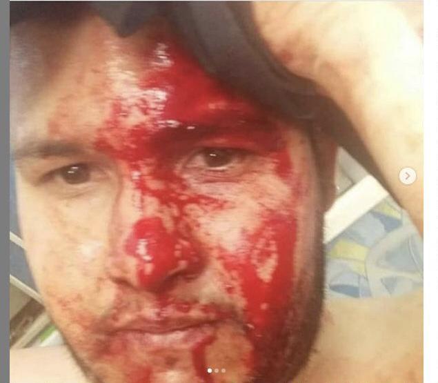 Rancagua: denuncian brutal agresión en contra de pareja venezolana en conocido centro comercial